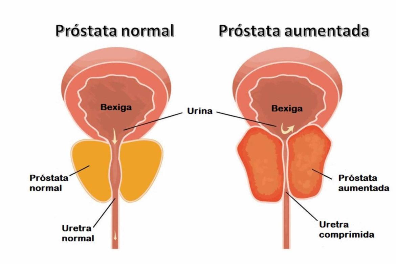 cancer de prostata pode matar