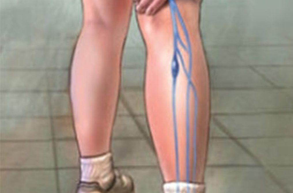 Sensação de queimação na parte inferior das pernas ao correr