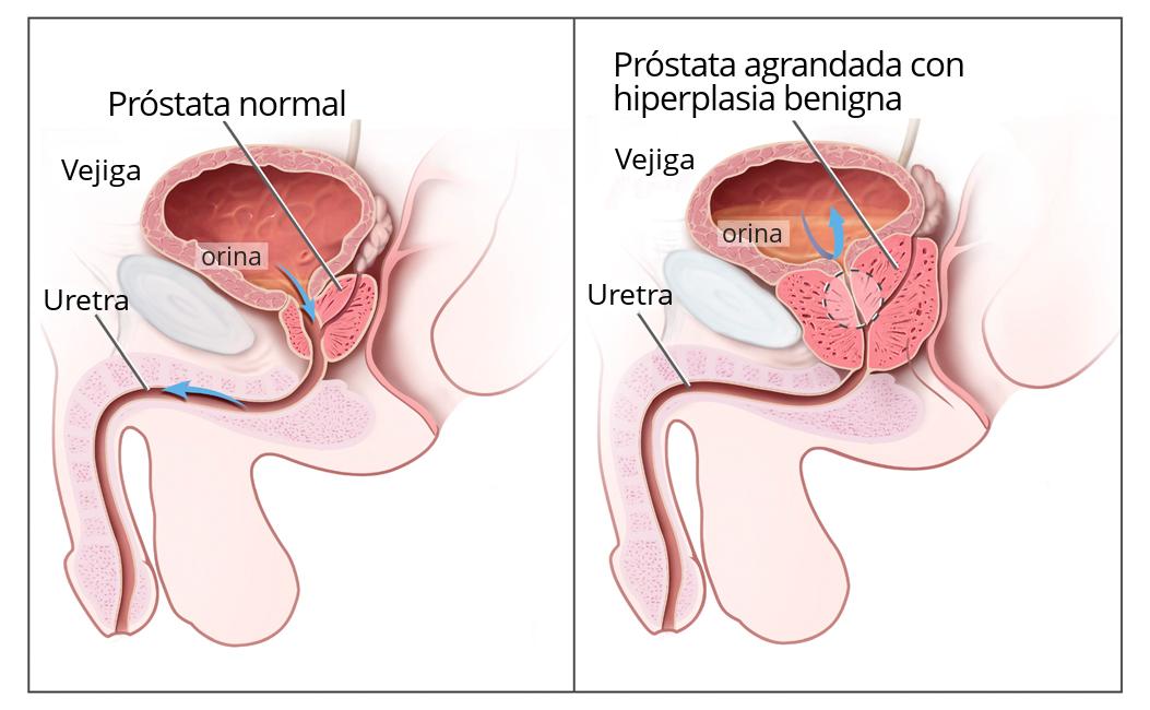cancer de prostata o que e)